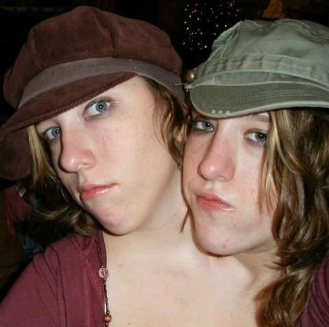 Les sœurs siamoises bicéphales (les seules vivantes au monde) Abigailbritanny04