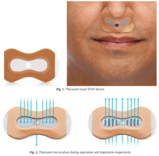 nasalstrip