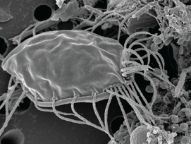 'Ravenous, Hairy Ogre' Microbe an Entirely New Branch on Tree of Life